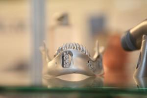 Neue Chancen in der Medizin: Prothese aus dem 3D-Drucker